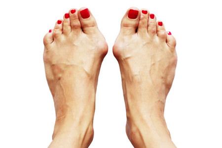 外反母趾の女性の足