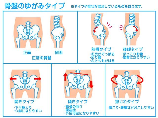 骨盤のゆがみのタイプの説明図