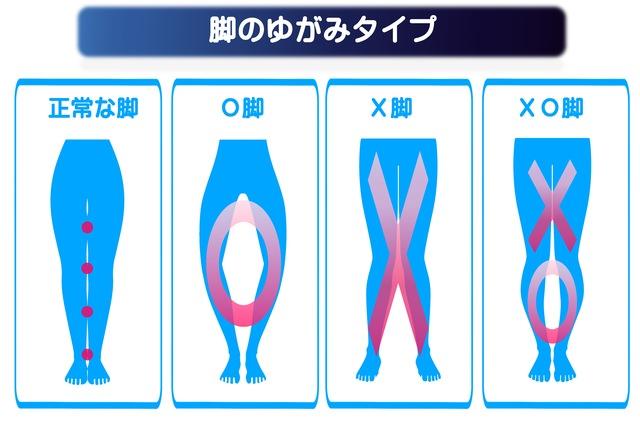 正常な脚、O脚、X脚、XO脚の説明図