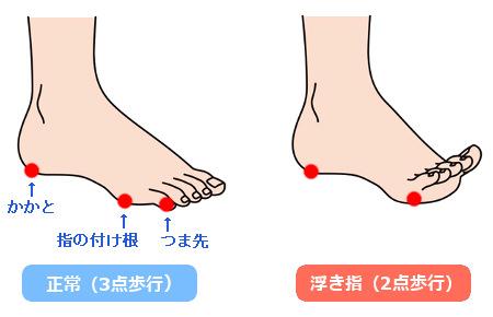 3点歩行と2点歩行の説明図